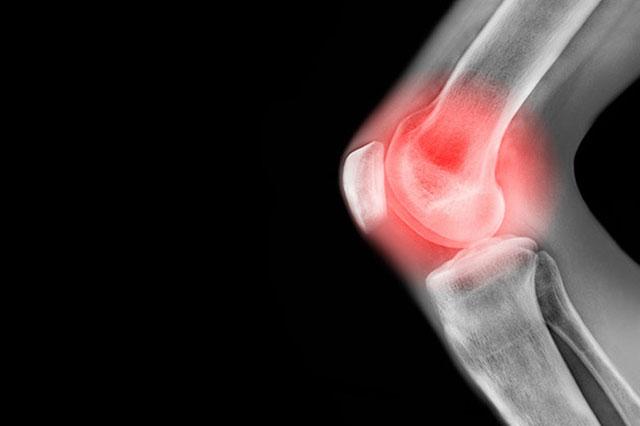 بهبود تعویض مفصل زانو یک سال زمان نیاز دارد