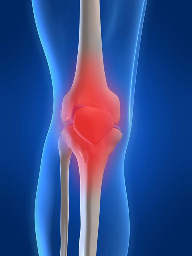 ۴ حرکت ورزشی ساده برای کاهش درد زانو
