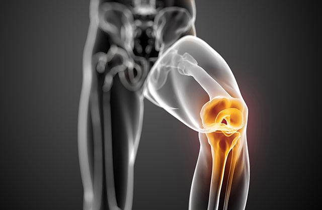 درمان های طبیعی برای آرتروز