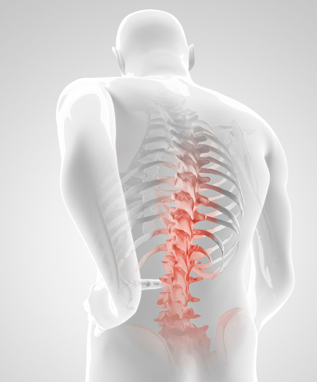 روشهای درمانی دیسک کمر و گردن