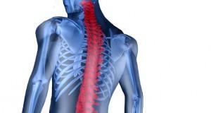 ساخت ایمپلنت نخاعی برای کاهش درد ستون فقرات