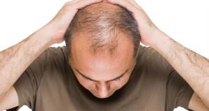 برای درمان ریزش مو، آب آهندار بخورید